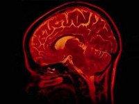 Здоровый сон делает голову «легкой»